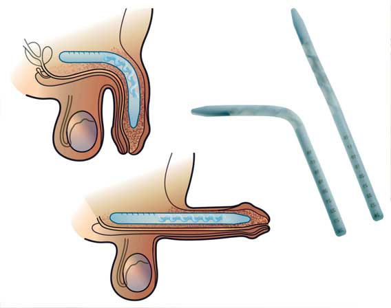 Coloplast Genesis 1 Piece Malleable Penile Implant India Cost