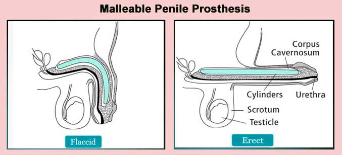 Malleable Vs Inflatable Penile Prosthesis, which one is better?